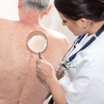 5 Ways to Prevent Skin Cancer in Elderly People