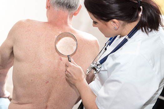 5 Ways to Prevent Skin Cancer in Seniors in Rhode Island