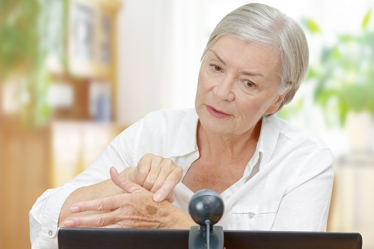 All About Age Spots Symptoms Prevention and Treatment in Rhode Island